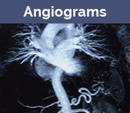 Angiograms in two views
