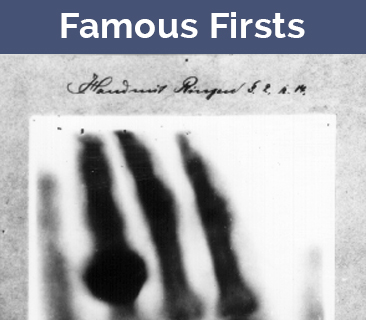 Famous First Medical Images