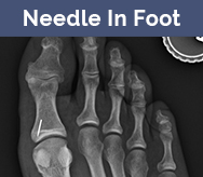 Needle in foot xray