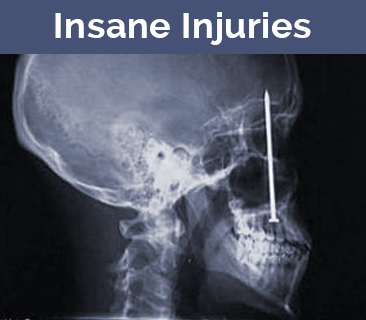 Medical images of injuries