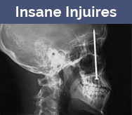 insane injuries in two views