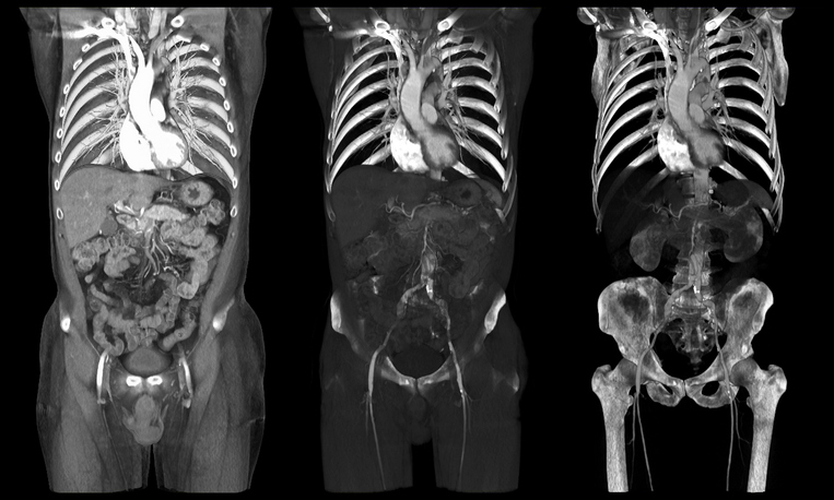 torso CT in two views