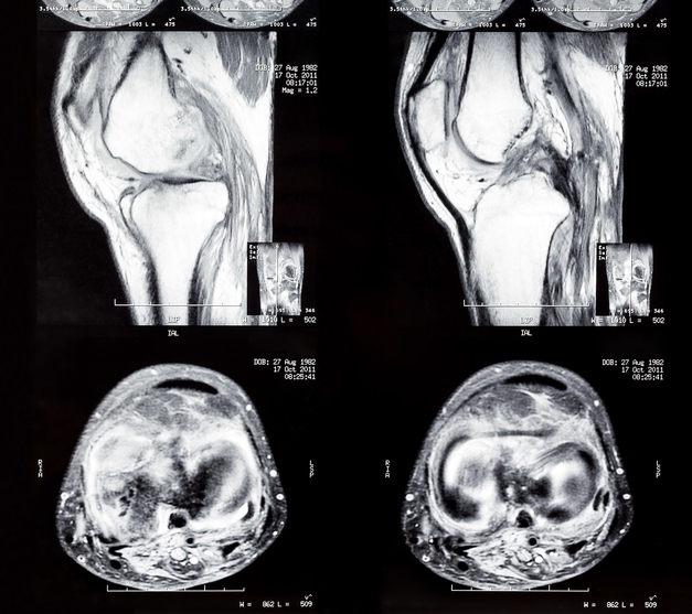knee CT two views