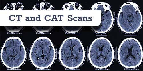 CT and CAT scan two views
