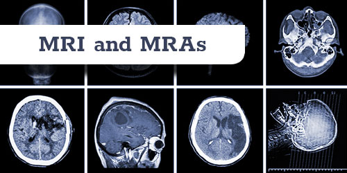 MRI and MRA in two views