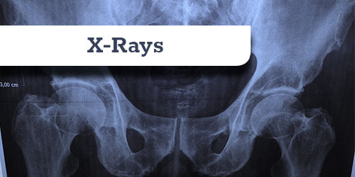 x-rays in two views
