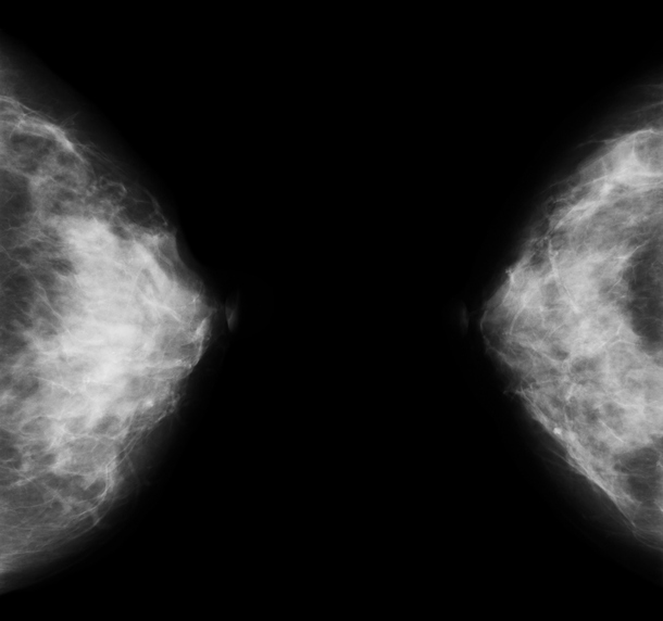 Bilateral mammogram from Two Views