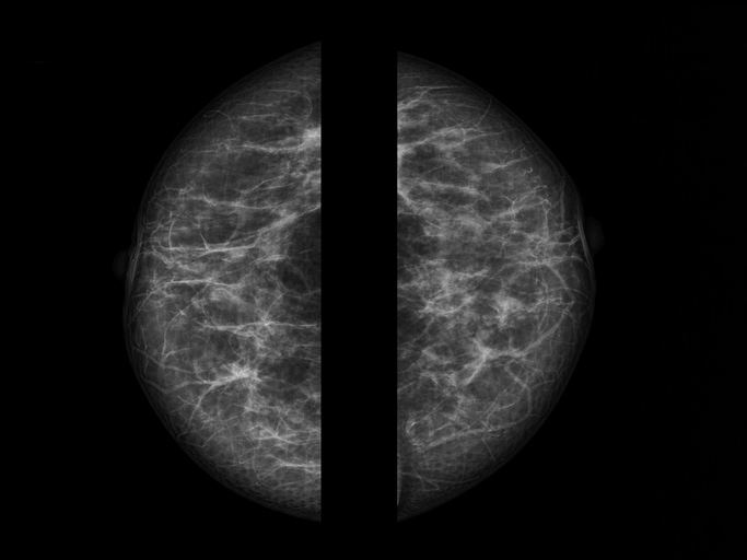 views of mammogram