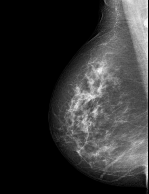 side view of mammogram