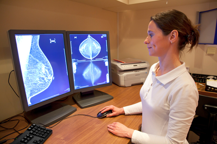 mammogram radiologist two views