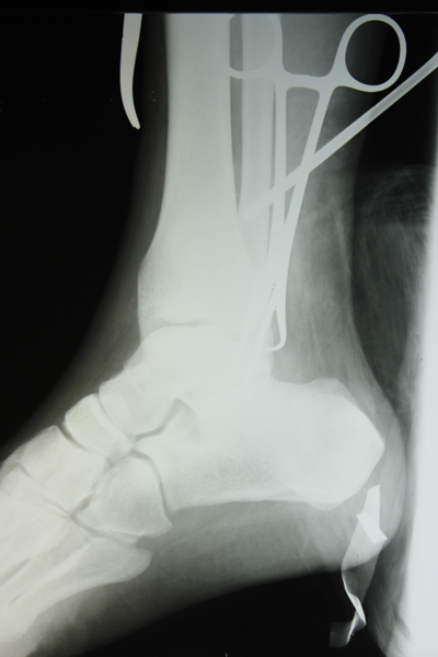 Xray of broken ankle two views