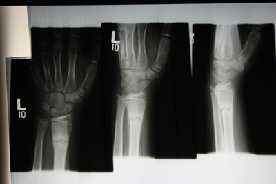 Xray of fractured Ulna in arm two views