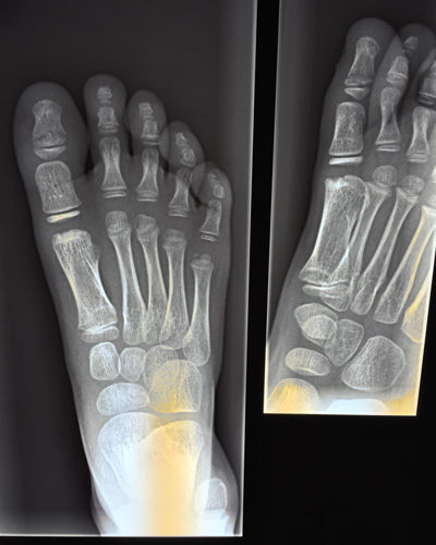 Xray of foot two views