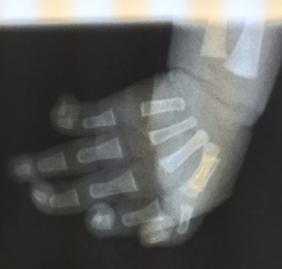 X-ray of infant hand