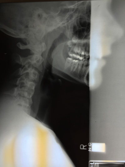 X-ray of jaw presenting TMJ two views