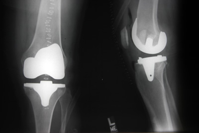 X-ray knee prostheses two views