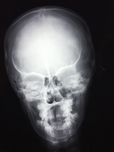 Xray of head from Two Views