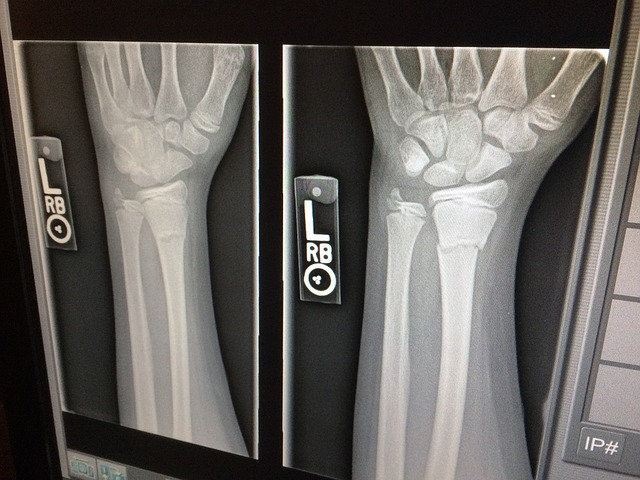 xray of broken arm in two views