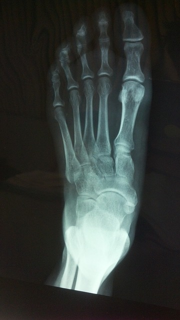 Xray of ankle in two views