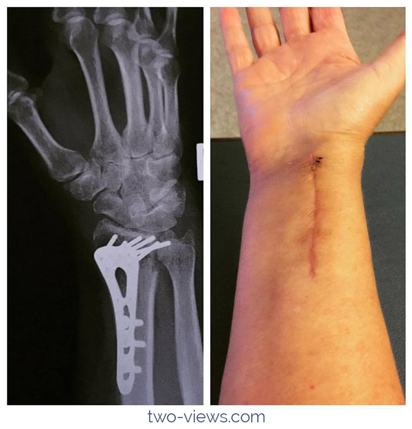 xray of wrist in two views