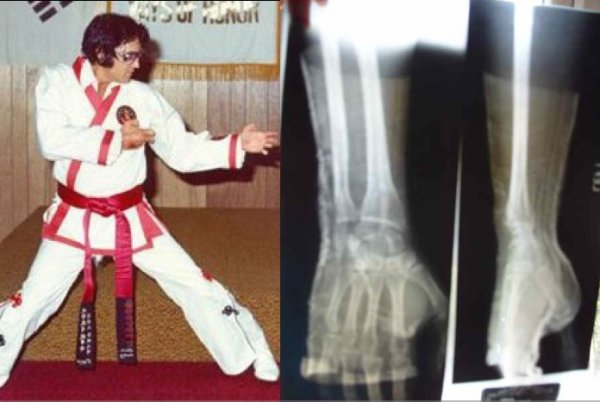 two views of elvis presley auction x-ray