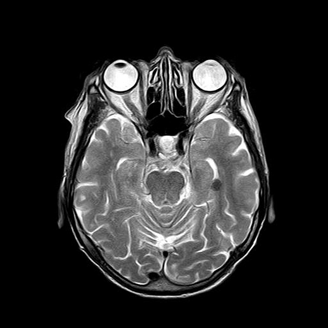Brain MRI top two views